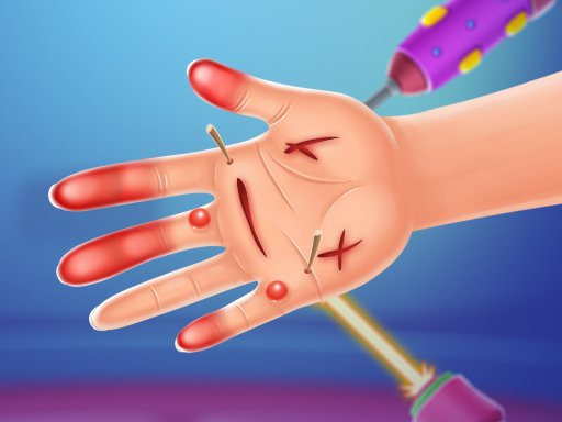 Play Hand Doctor Game
